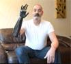 Бионическая рука1