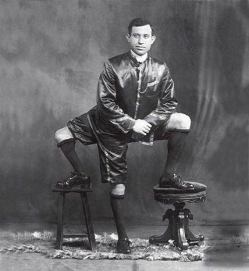 Франческо Лентини - человек с тремя ногами