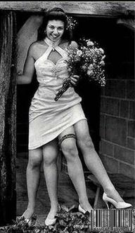 Миртл Корбин - женщина с четырьмя ногами
