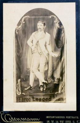 Георг Липперт - человек с тремя ногами