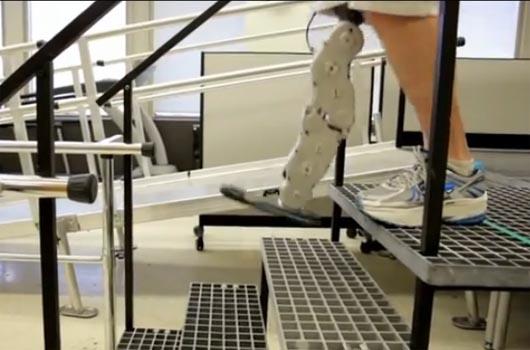 бионика, бионическая нога, запрещенная наука