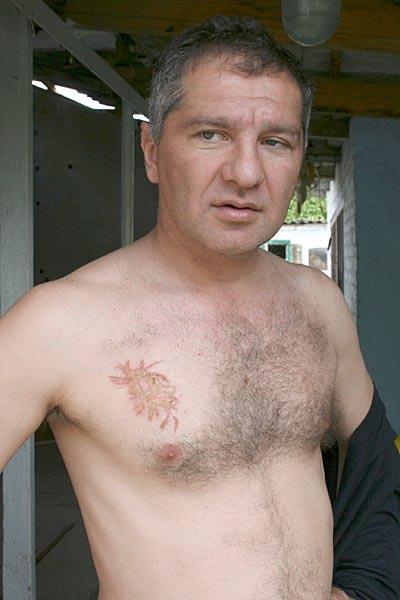 chelovek v kotrogo udarila molija-2